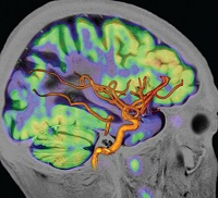 Pet mri image for news