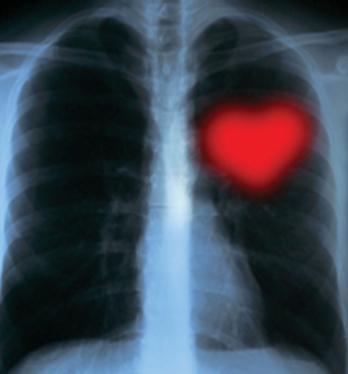 Heart center 1