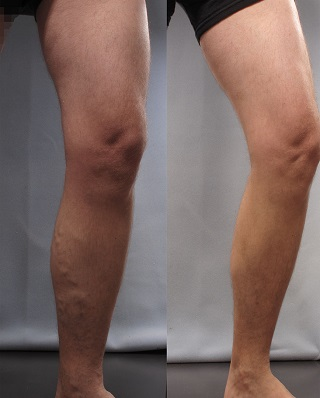 Varicose vein varithena before and after