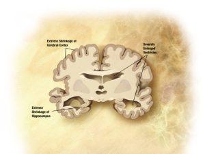 Alzheimers disease brain severe 600x450