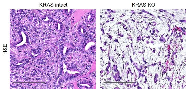 Images showing KRAS intact in tumor tissue and knocked out in a laboratory model of PDAC.